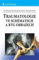 Traumatologie ve schématech a RTG obrazech